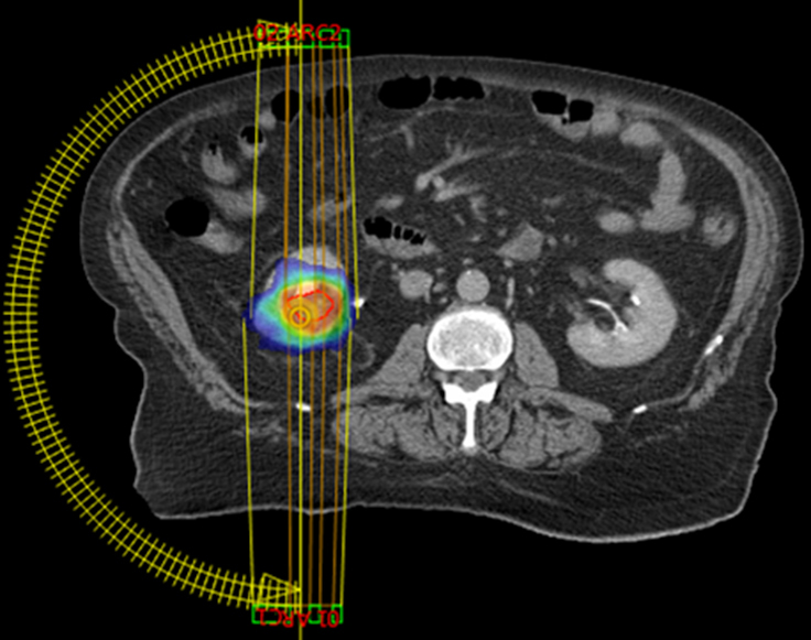 Stereotactic Body Radiation Therapy For Metastases To The